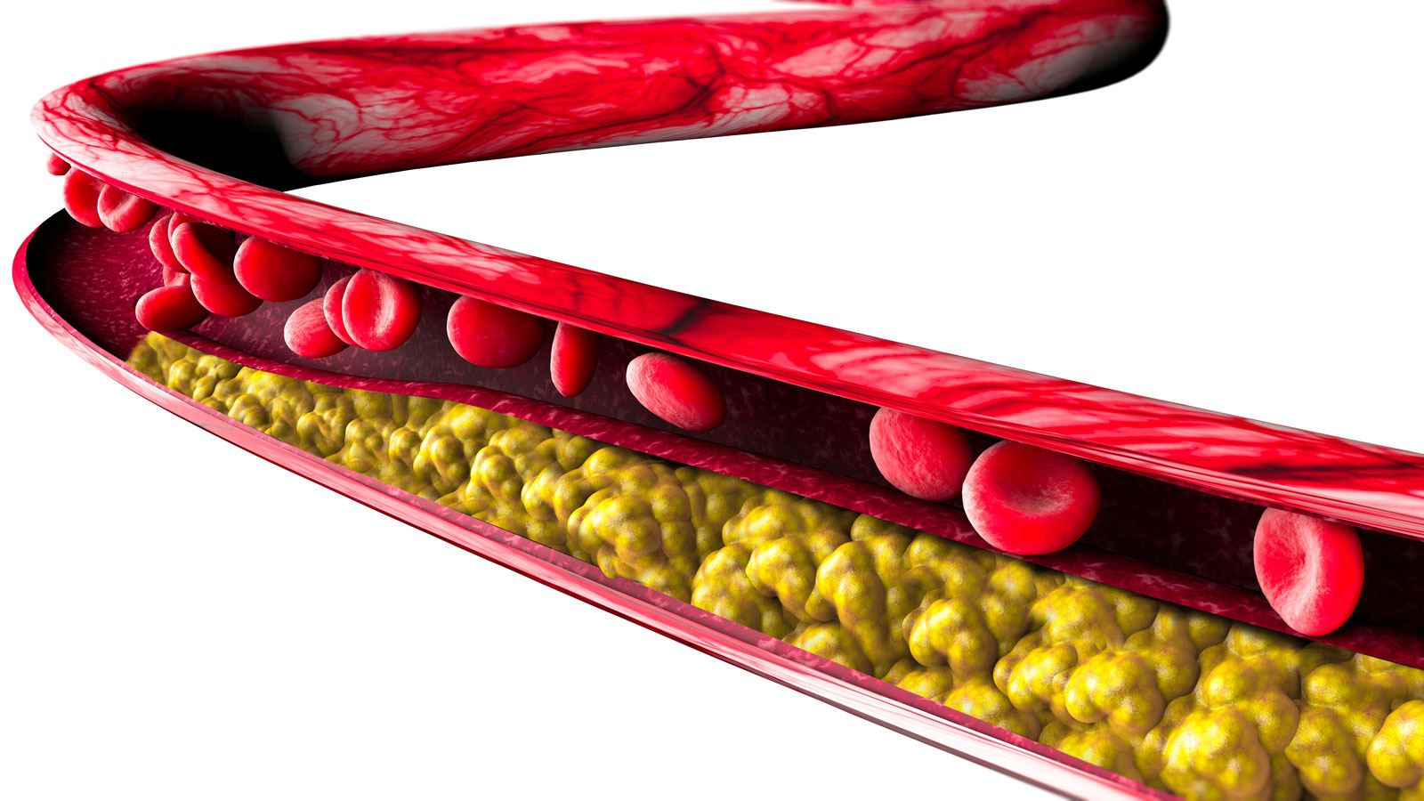 Fat, cholesterol and calcium cells build up inside the artery wall in